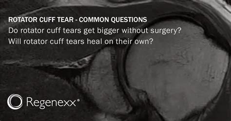 Can A Torn Rotator Cuff Heal On Its Own Without Surgery?