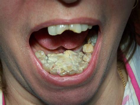 couronne dentaire qui bouge carabiens le forum