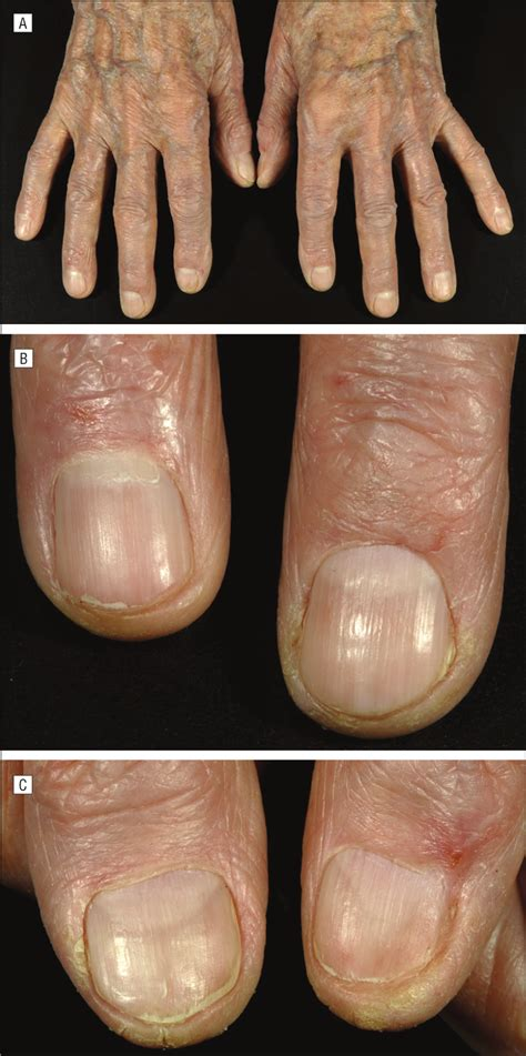 specific nail alterations  cutaneous  cell lymphoma
