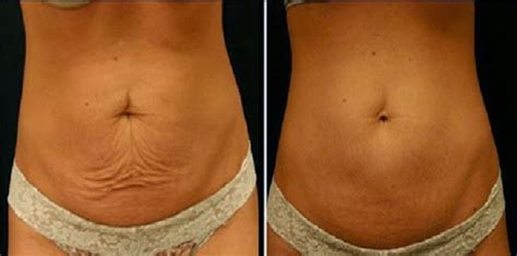 skin elasticity  weight loss calisianet