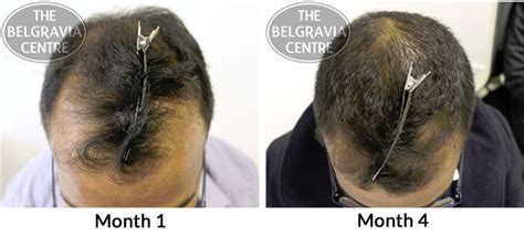 Rogaine Shedding After 1 Month by Do Minoxidil Only Hair Loss Treatment Plans Work