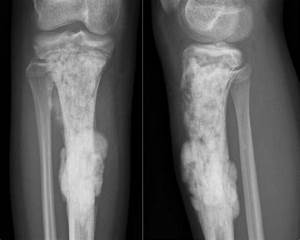 The Radiology Assistant : Sclerotic bone tumors and tumor ...