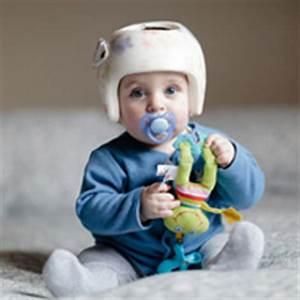 Casque De Protection Bébé : casque de protection pour b b comment le choisir ~ Dailycaller-alerts.com Idées de Décoration
