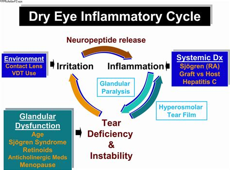 cycle  dry eye inflammation american academy