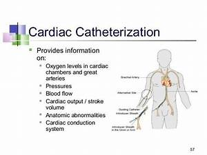 What Is A Heart Catheterization