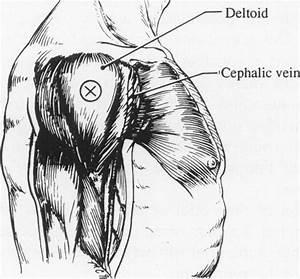 Intramuscular Injection Site  Shoulder  Deltoid   4