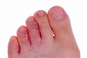 Грибок между пальцев на ногах у ребенка