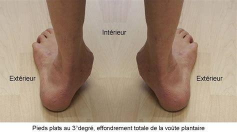 douleur al interieur du pied pathologies oxa m 233 dical
