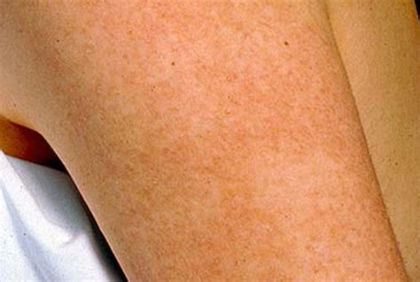 Keratosis Pilaris Symptoms And Signs Kp Elements