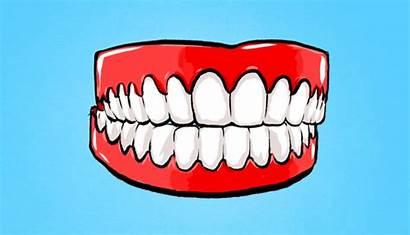 Teeth Tooth Grinding Grinder Bruxisme Mouth Dental