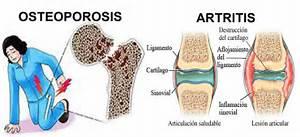 Osteoporosis Osteoporosis