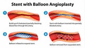 Balloon Angioplasty Singapore - Artherosclerosis Treatment  Heart Diseases Angioplasty