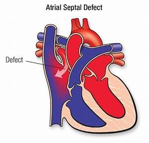 Atrial Septal Defect  Asd