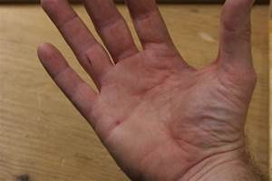 How to Remove a Wood Splinter from Skin