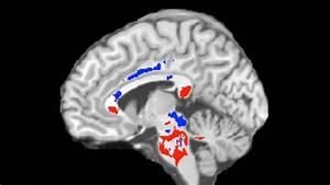 Concussion Outcome Predicted Using Advanced Imaging