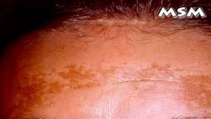 Skin Pigmentation Problems
