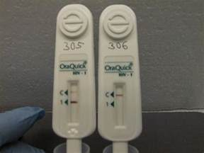 Oraquick Rapid HIV Test Results