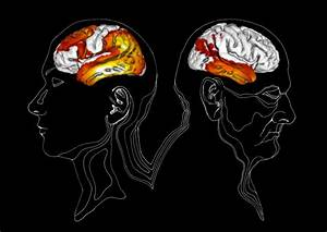New possibility of studying how Alzheimer's disease ...
