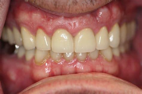 Ectodermal Dysplasia Teeth