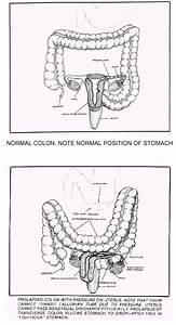 Tissue Cleansing Through Bowel Management By Bernard Jensen D