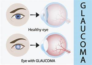 Glaucoma 101  What Contact Lens Wearers Need To Know