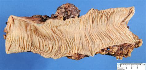 colon humpathcom human pathology