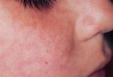 Picture of Morbilliform Drug Eruption on Face