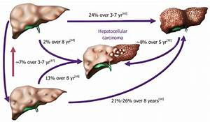 The Natural History Of Nonalcoholic Fatty Liver Disease