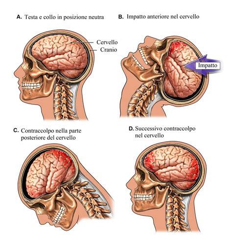 trauma cranico sintomi conseguenze  terapia  bambini