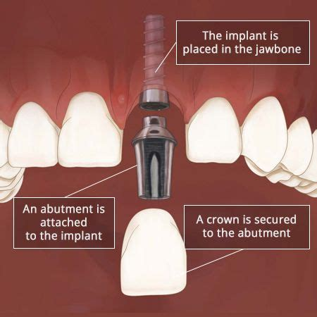 front tooth implant dental implant front tooth