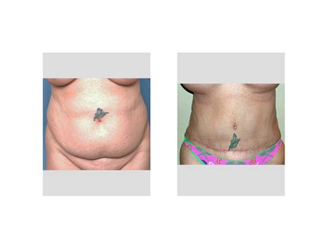 Abdominoplasty Archives Page 6 Of 9