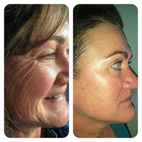 Micro Needling Before & After Gentle Touch CT