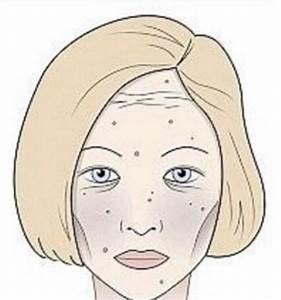 Große Poren Wangen : genau das macht wein gluten und zucker mit deinem gesicht nachrichten news ~ Yasmunasinghe.com Haus und Dekorationen