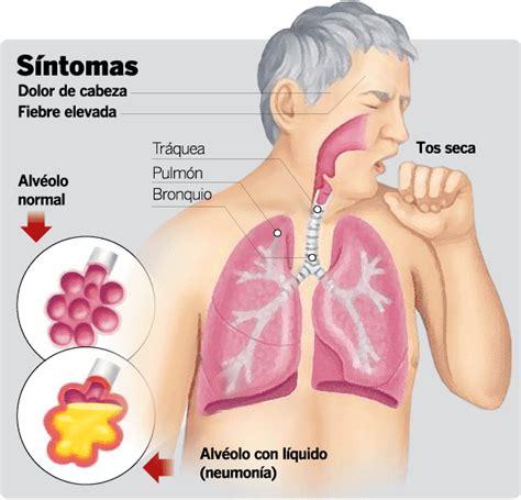 Hoesten longontsteking