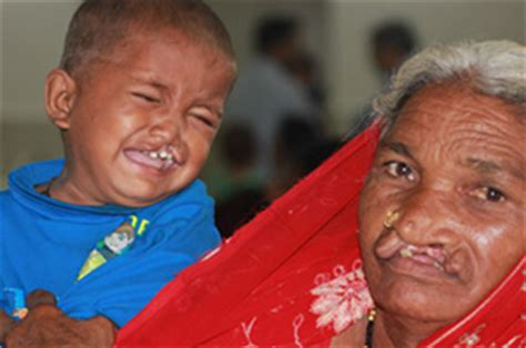 Cleft Lip Charity We Work How We Change Lives Northern Cleft Foundation