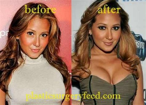 Pin on Breast Implant Plastic Surgery