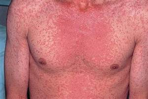 Measles Pictures