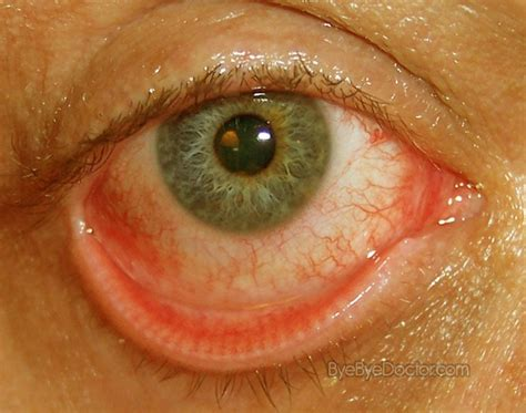 pink eye pictures symptoms treatment contagious remedies