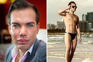 Human Ken doll spends further £50k on enlargement surgery ...