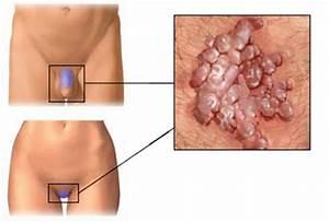 thrombosed hemorrhoid healing time