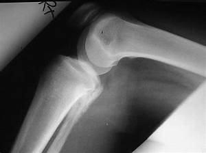 Osteosarcoma of the fibula | Image | Radiopaedia.org