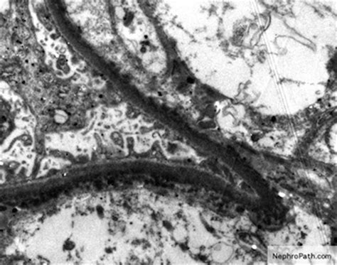 light chain disease pathology outlines light chain deposition disease
