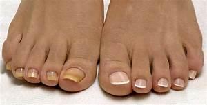 Сон грибок ногтей на ногах