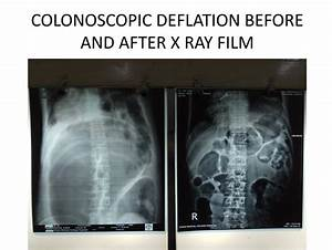 X-RAY OF COLONOSCOPIC VOLVULUS DEFLATION,DR. MASFIQUE A ...