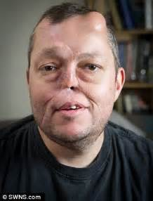 paxton singleton father hertfordshire man who lost his nose to cancer grows new