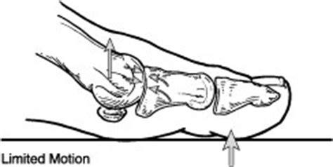 hallux rigidus foot health facts