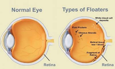 light spots in vision floaters in the eye causes black spots in vision get