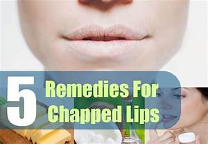 5 Home Remedies For Chapped Lips Natural Treatment Cure