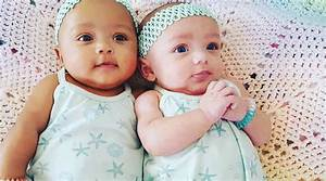Fraternal Twins, Different Skin Colors: Meet The Viral Babies