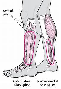 Shin Splints - Injuries And Poisoning
